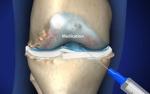 intraartikulerenjeksiyon